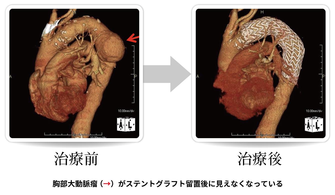 手術 高齢 しない 瘤 大動脈